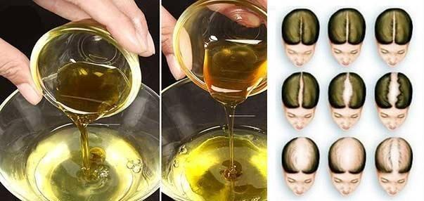 Masați-vă scalpul cu acest ulei ayurvedic si nu veți mai pierde nici un singur păr după aceasta. Stopează căderea părului